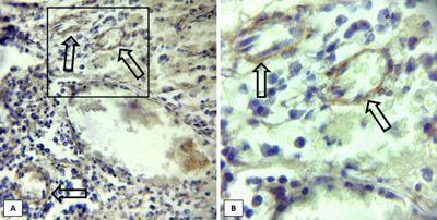 Expresión de Selectina E (flechas) en vasos sanguíneos de muestras de pacientes con granuloma piógeno oral. A) 400X. B)1000X.