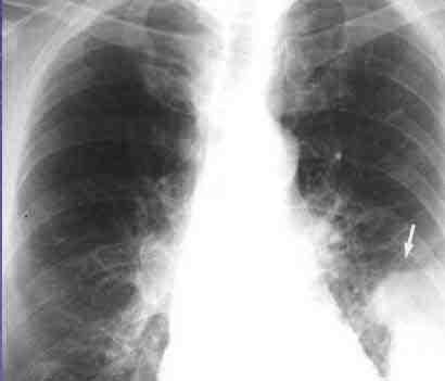 TEP-radiografia-simple-torax