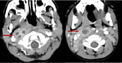 Fig. 2 Cortes axiales de TC de cuello donde se objetivan varias colecciones hipodensas con realce periférico y un importante aumento de las partes blandas a nivel de espacio retrofaríngeo. Aplanamiento de la musculatura prevertebral y compresión sobre la grasa parafaríngea.
