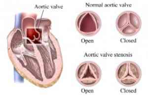 anatomia-valvulas-corazon