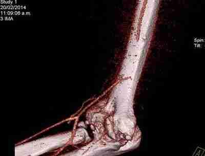 Lesión de arteria humeral por arma blanca y reparación con vena ...