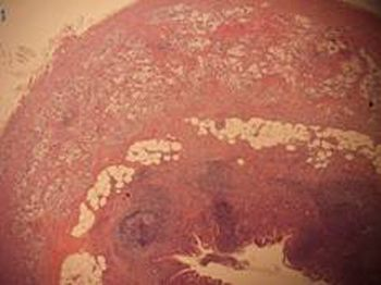 apendice-cecal-tumor-carcinoide-anatomia-patologica