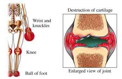 artritis-reumatoidea-juvenil-destruccion-cartilago