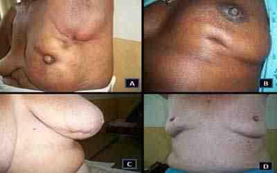 Etapa 2 del cncer de mama Salud y bienestar