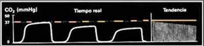 capnograma-descenso-EtCO2