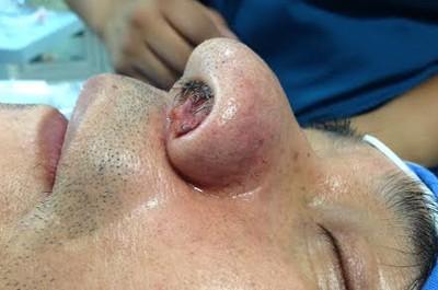 carcinoma-sebaceo