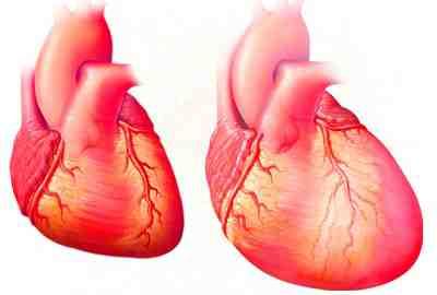 Plan de cuidados estandarizado. Insuficiencia cardiaca aguda en ...