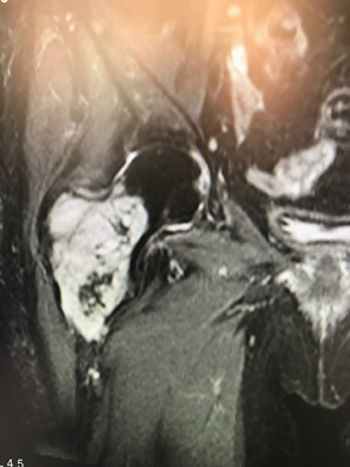 Foto 2. RM. Lesión expansiva y agresiva compatible con condrosarcoma