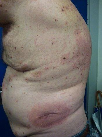 eczema-agudo