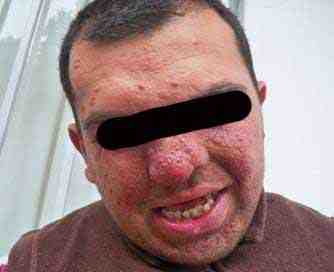 esclerosis-tuberosa-angiofibromas-faciales