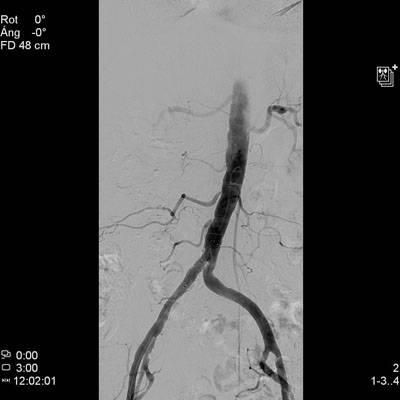 1. Arteriografía que muestra estenosis en el origen de la iliaca primitiva derecha y el resultado tras la realización de una Angioplastia transluminal