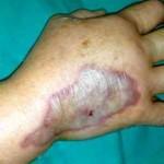 Actuación de enfermería ante extravasación de contraste intravenoso