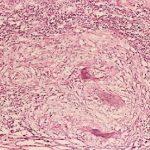 Hemorragia digestiva secundaria a tuberculosis intestinal