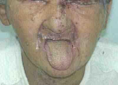 herpes-lesiones-faciales