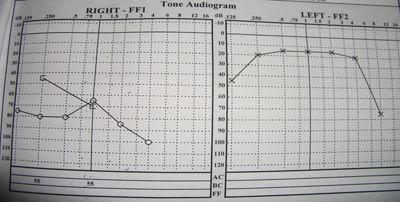 Hipoacusia-derecha-audiometria