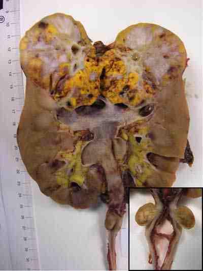 lesion-tumoral-ureter