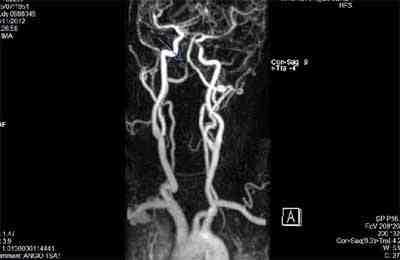 malformacion-arteriovenosa-congenita-cerebral
