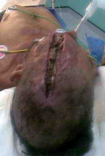 neurocirugia-traumatismo-craneoencefalico