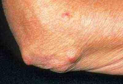 nodulos-reumatoideos-eritema-nodoso