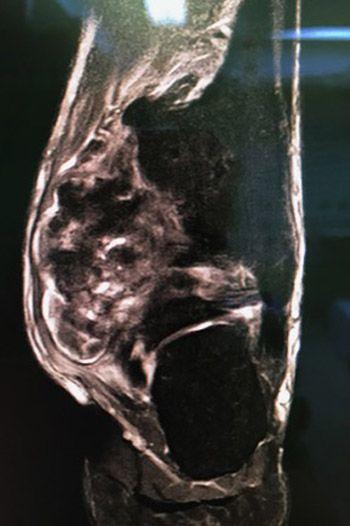 Foto 2. Resonancia Magnética, donde se aprecia la lesión cartilaginosa cuyo pedículo está en el peroné y se extiende hacia la zona medial y posterior atrapando al flexor del primer dedo y comprimiendo la zona del tibial posterior.