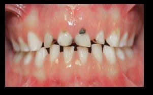 2-osteogenesis-imperfecta