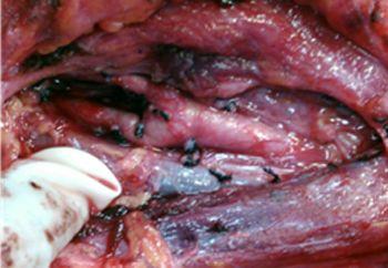 Paraganglioma carotídeo. Cirugía