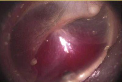 paraganglioma-timpanico
