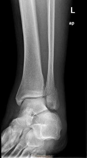 perone-fractura-distal-epifisaria