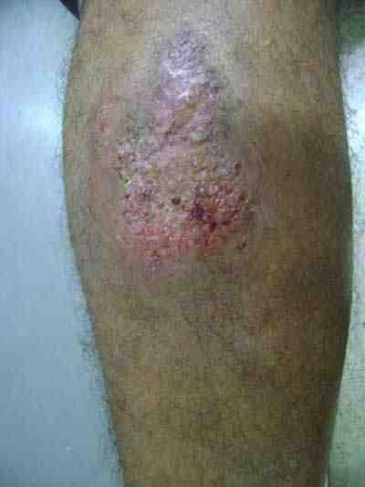 pioderma-gangrenoso-caso-clinico