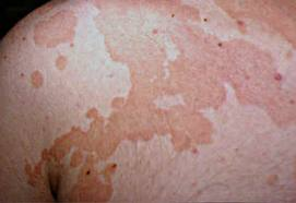 ptiriasis-versicolor-maculas-hipocromicas