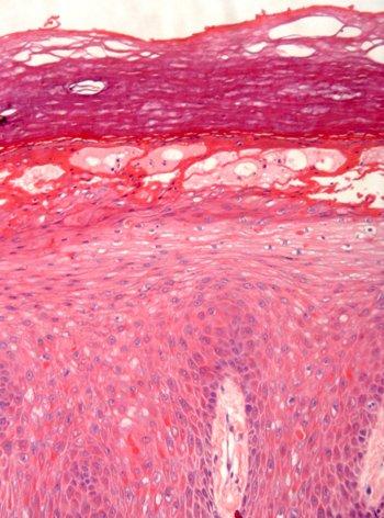 queratoderma-epidermolítico-anatomia-patologica