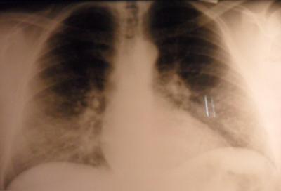 radiografia-torax-miocardiopatia-hipertrofica