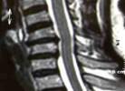 resonacia-magnetica-columna