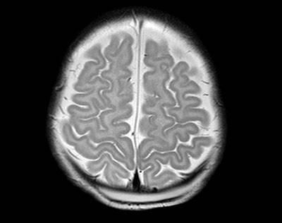 Foto 2: Resonancia Magnética Cerebral, corte transversal.