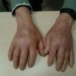 Sinovitis seronegativa simétrica remitente del anciano con edema o síndrome RS3PE