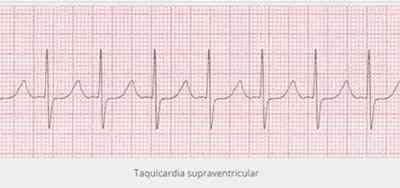 taquicardia-supraventricular