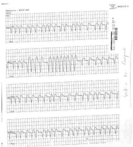taquicardia-ventricular