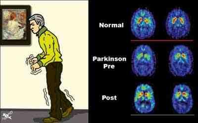 temblor-Parkinson