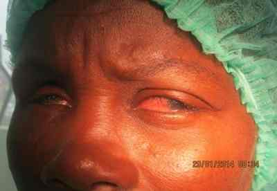tracoma-preoperatorio