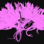 Tractografía. Técnica neurorradiológica aplicada al estudio de la neuroanatomía