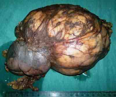tumor-renal