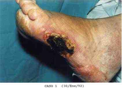 ulcera-cronica-torpida