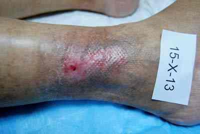 ulcera-varicosa-epitelizada