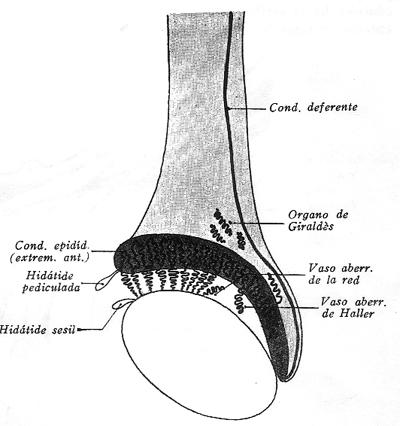 vestigios-embrionarios-yuxtatesticulares