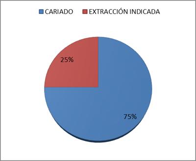 cariado-extraccion-indicada