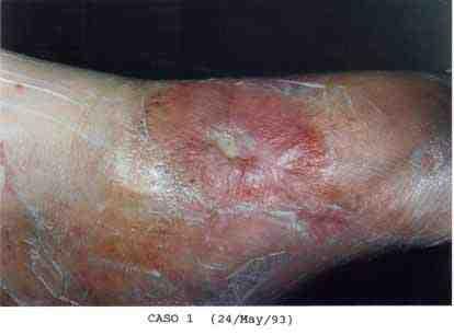 21-ulcera-cronica-torpida