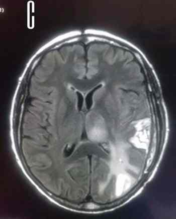 RMN-glioblastoma