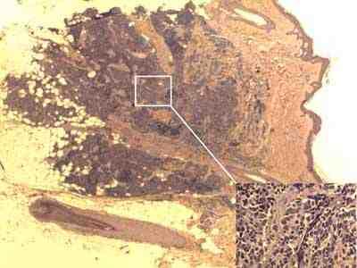 anatomia-patologica-letalides