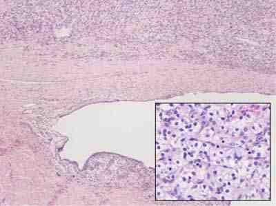 anatomia-patologica-tumoracion