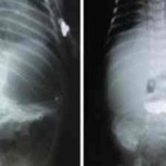 Atresia de píloro. Hallazgo clínico